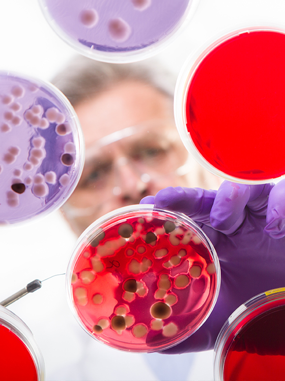 Microbial colonies